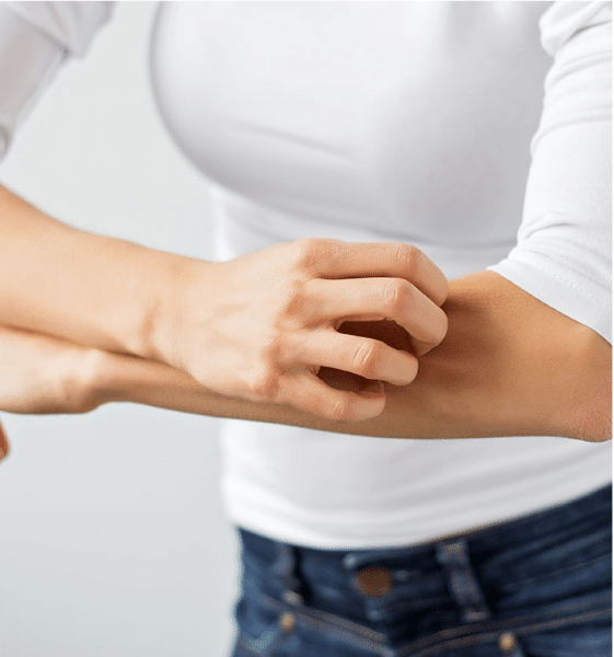 5 Best Home Remedies for Skin Allergy Relief for Adults
