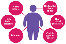 Photo of Obesity and Related Diseases