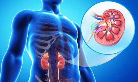 Photo of Chronic Kidney Disease (CKD) Symptoms, Treatment, Causes